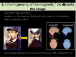 3 inhomogeneity of the magnetic field distorts the image