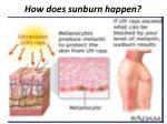 how does sunburn happen1