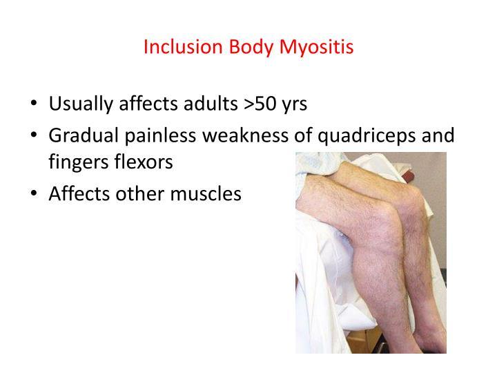 Inclusion Body