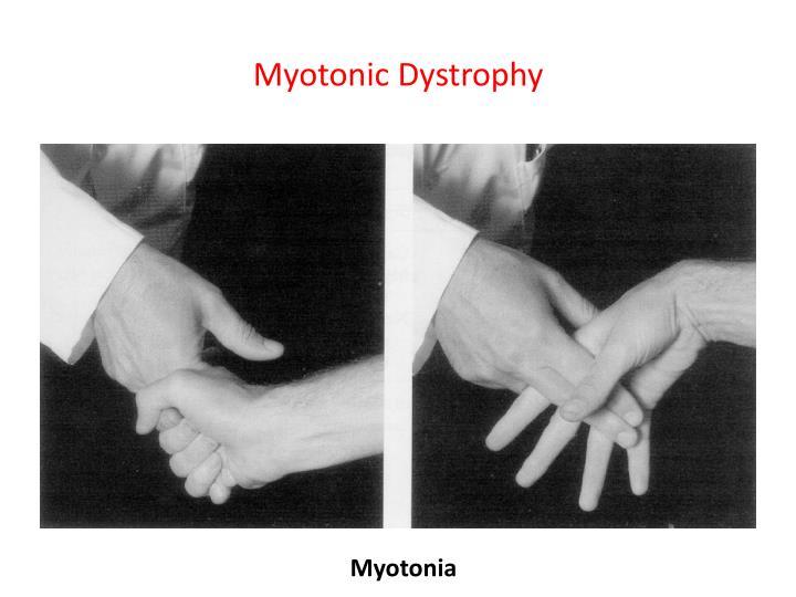 Myotonic