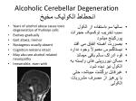 alcoholic cerebellar degeneration