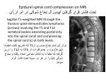 epidural spinal cord compression on mri