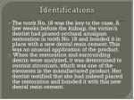 identifications11