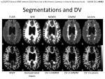 segmentations and dv