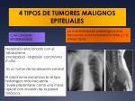 4 tipos de tumores malignos epiteliales