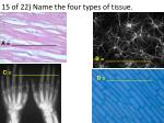 15 of 22 name the four types of tissue