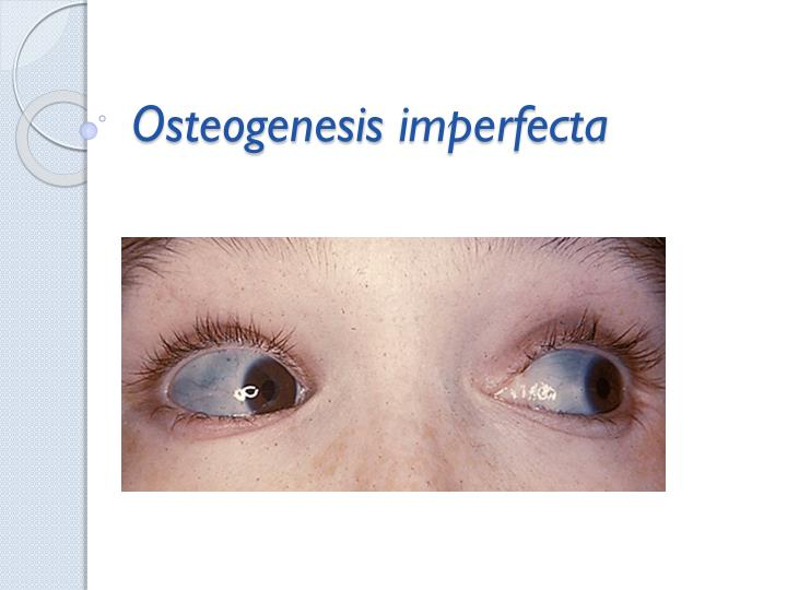 clinical description of osteogenisis imperfecta oi Osteogenesis imperfecta (oi) is a group of inherited genetic disorders with a wide range of clinical heterogeneity bone fragility is the cardinal feature of.