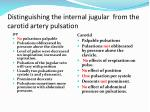 distinguishing the internal jugular from the carotid artery pulsation