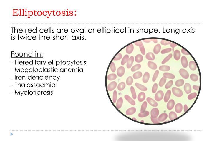 Elliptocytosis