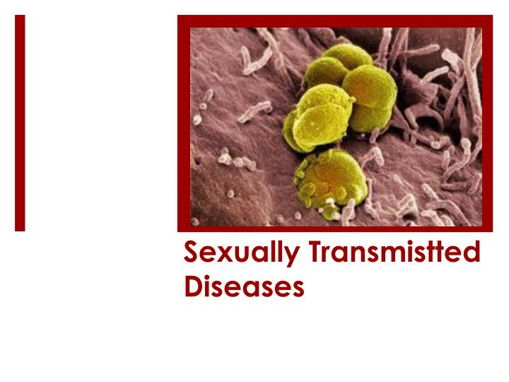 sexually transmistted diseases n.