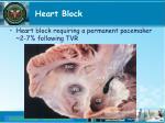 heart block1