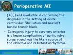 perioperative mi2