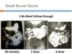 small bowel series1