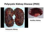polycystic kidney disease pkd