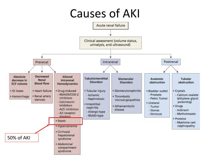 Causes of AKI