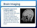 brain imaging1