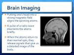 brain imaging2
