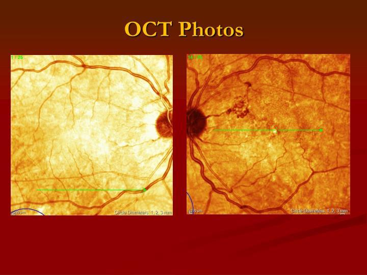 OCT Photos