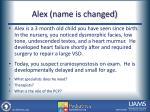 alex name is changed