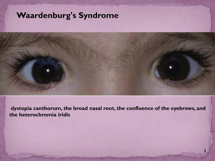 Waardenburg's Syndrome