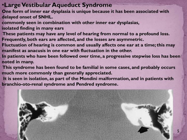 Large Vestibular Aqueduct Syndrome