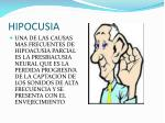 hipocusia