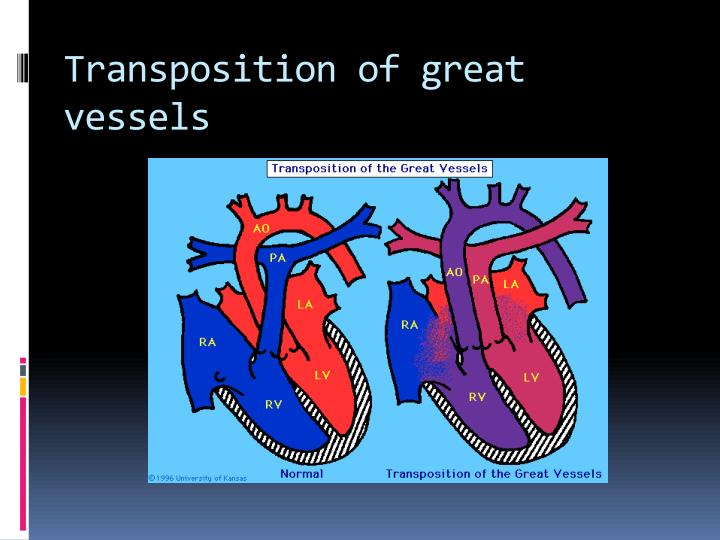 Transposition of great vessels