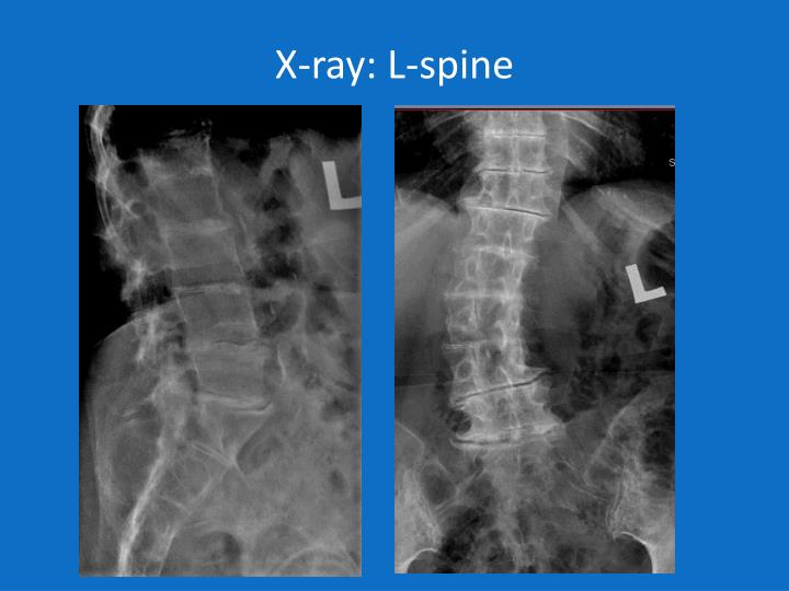 X-ray: L-spine