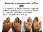 reticulate acropigmentation of dohi rad