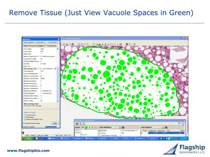 Remove Tissue (Just View Vacuole Spaces in Green)