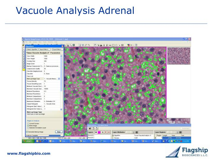 Vacuole Analysis Adrenal