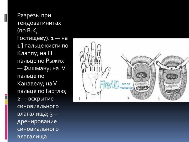 Разрезы при тендовагинитах (по В.К, Гостищеву). 1 — на 1 ] пальце кисти по