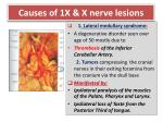 causes of 1x x nerve lesions