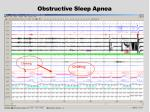obstructive sleep apnea1