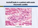 aschoff body in a patient with acute rheumatic carditis