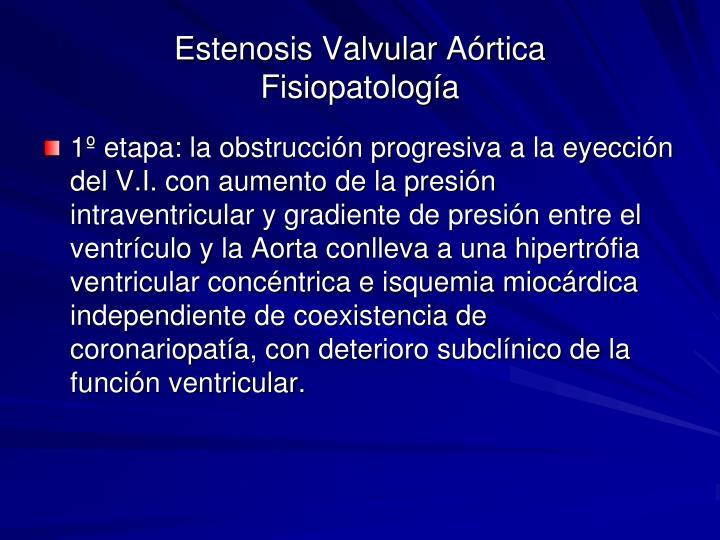 Estenosis Valvular Aórtica