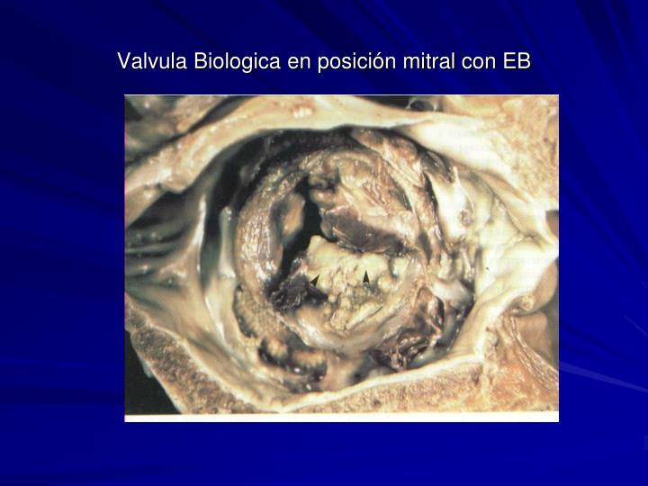 Valvula Biologica en posición mitral con EB