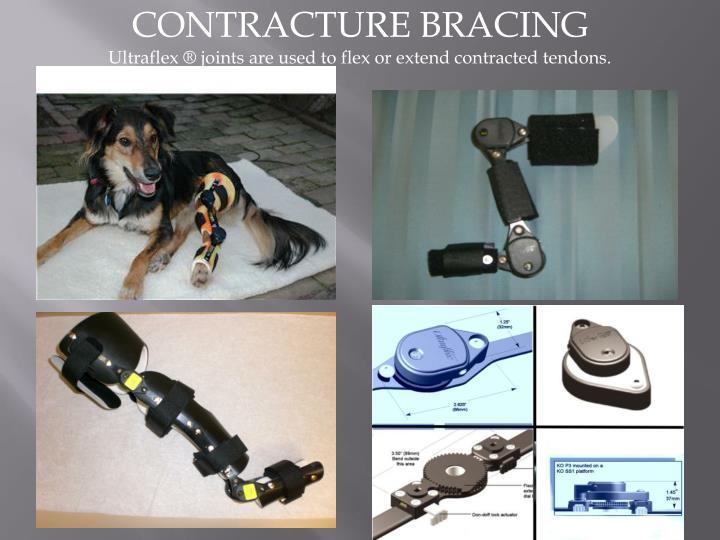 CONTRACTURE BRACING