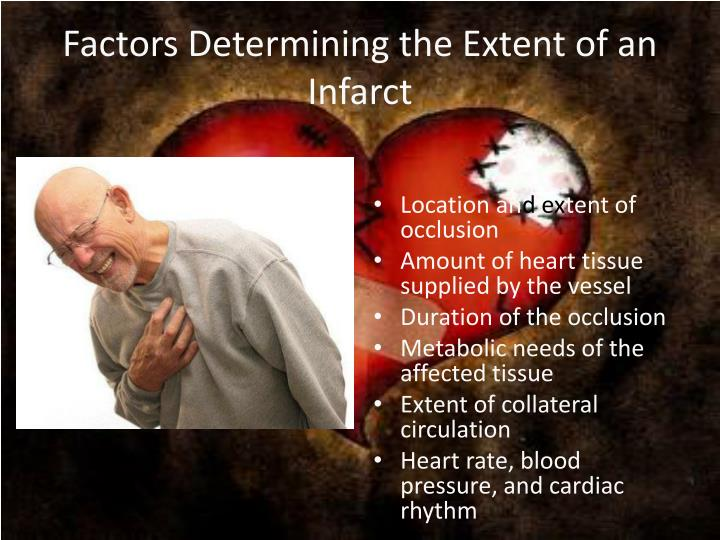 Factors Determining the Extent of an Infarct