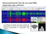 desenvolvimento tela de um sinal emg capturado pelo software