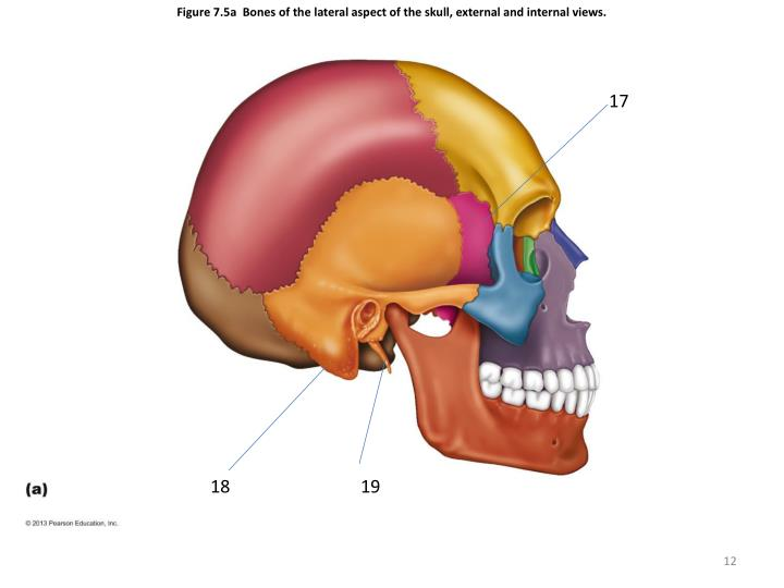 Figure 7.5a  Bones of the lateral aspect of the skull, external and internal views.