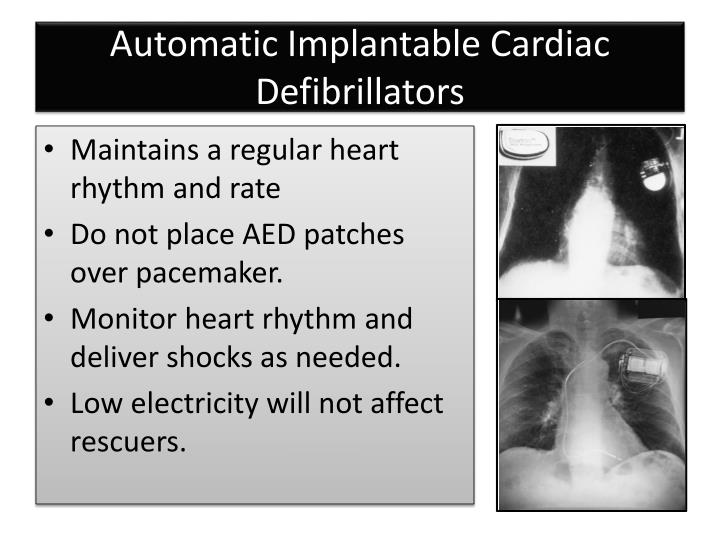 Automatic Implantable Cardiac Defibrillators