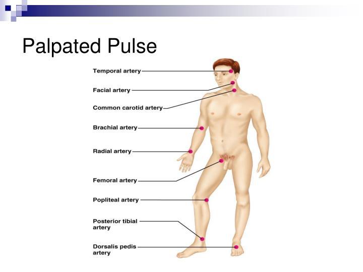 Palpated Pulse