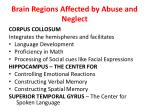 brain regions affected by abuse and neglect