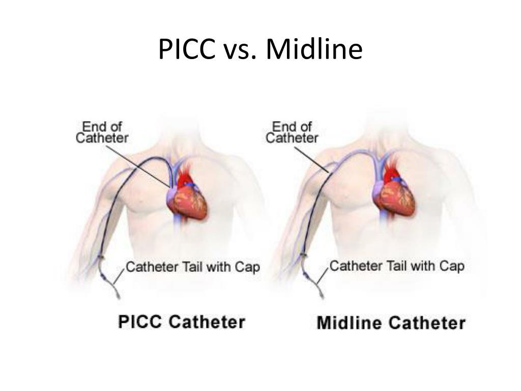 Central Line Vs Picc Line Vs Midline