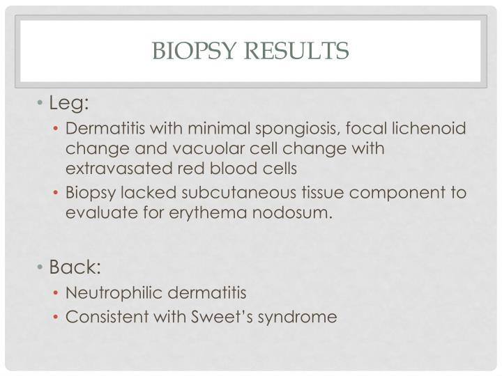 Biopsy Results