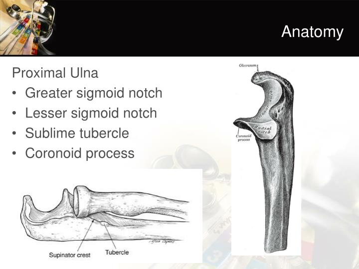 Ppt Lateral Elbow Instability Powerpoint Presentation Id2268664