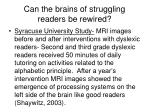 can the brains of struggling readers be rewired