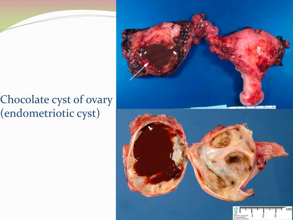 PPT - Polycystic Ovarian Disease and Endometriosis PowerPoint