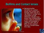 biofilms and contact lenses